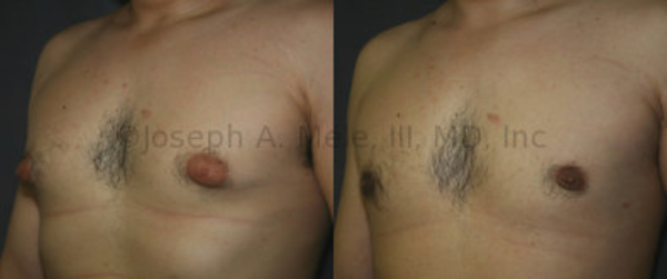Gynecomastia Reduction: In this case, direct excision of the glandular tissue from under the areola not only smooths the chest's contour, but also reduces the apparent size of the areolae -- the pigmented skin that surrounds the nipple. The darker color is simply a result of the same amount of pigment distributed over the new, significantly smaller, area.