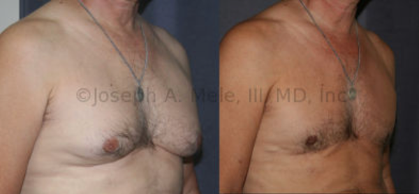 Gynecomastia Reduction: Sometimes the skin enveloping the breasts is redundant. This man has breast enlargement and sagging from his gynecomastia and loose skin. In this case, the breast tissue and the excess skin were removed through an incision that runs along the bottom of each breast. Without this, the skin would sag further over the inframammary fold from the loss of support caused by removing the chest's stuffing, just like deflating a balloon causes the  balloon to fall over.
