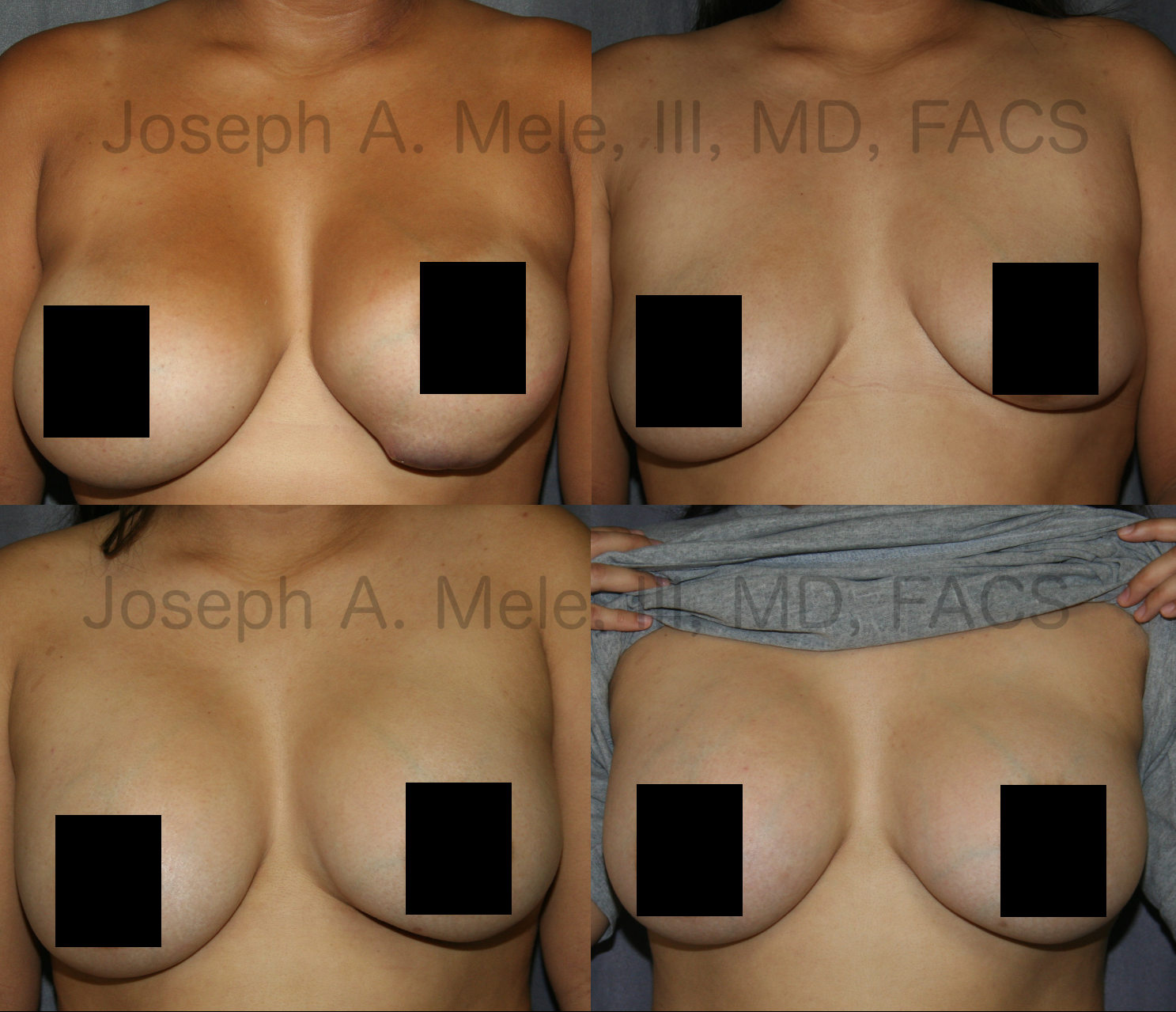 Breast Implant Revision: Sometimes breast implant revision is urgent. The square shape sticking out of the bottom of this patient's left breast is her breast implant, and it's about to fall out.