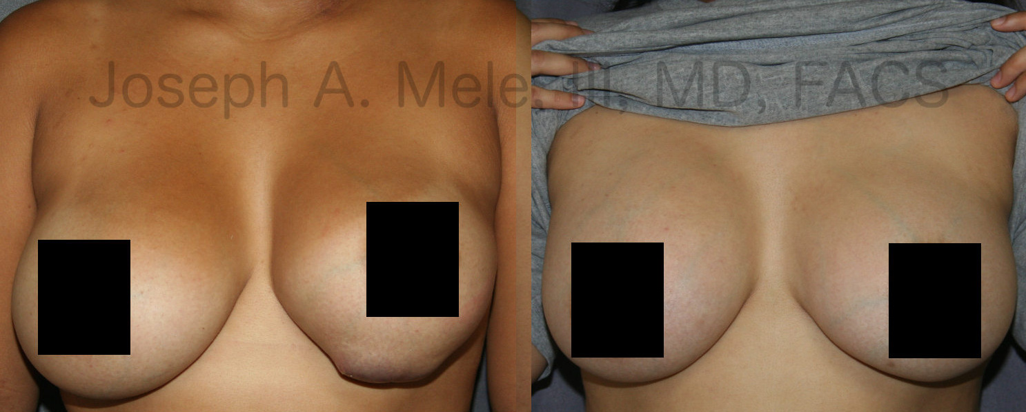 Breast Implant Revision Before and After Photos - the left picture is how the patient initially presented. The second picture is a few months after completion of both stages (breast implant removal and breast implant replacement with pocket modifications).