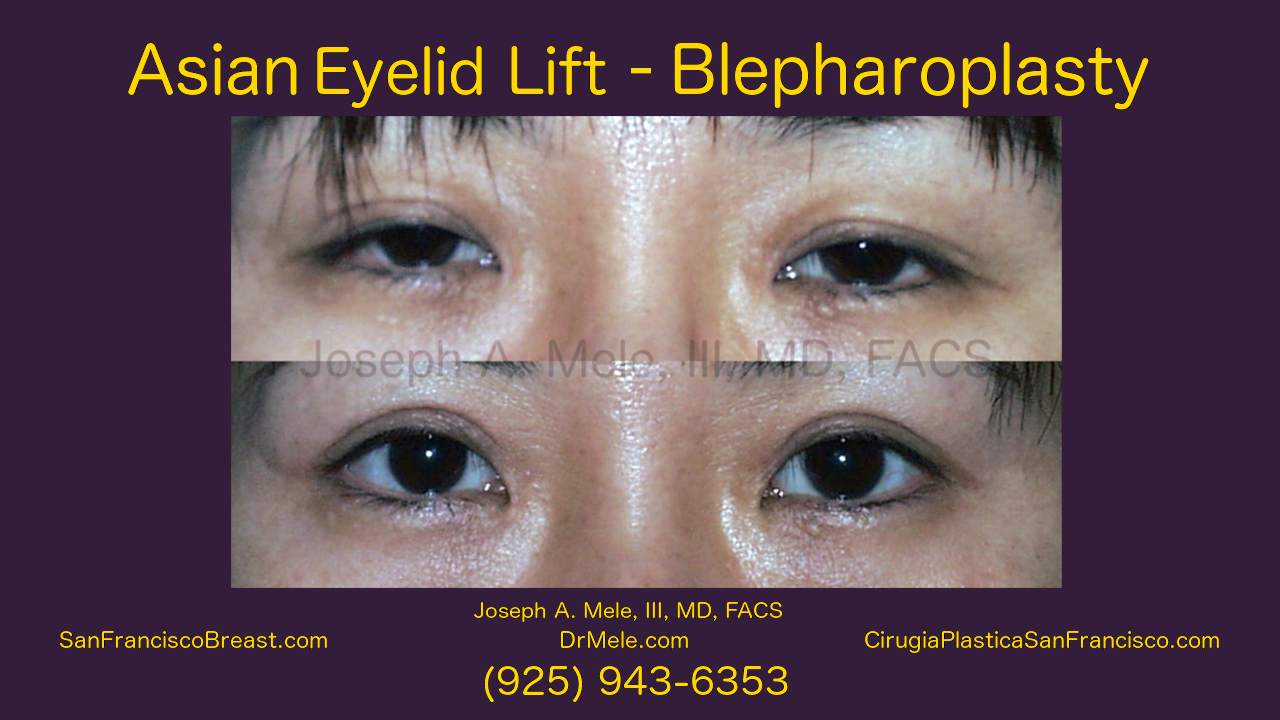 Double Eyelid Surgery Video with Asoan Blepharoplasty before and after pictures