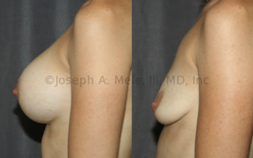 Breast Implant Removal Before and After Photos: Larger implants and less native breast tissue increase the desire for a Breast Lift after Breast Implant Removal Surgery. This patient  above had large volume breast implants, small natural breast tissue volume, but good skin tone and nipple placement. She elected not to have a Breast Lift.
