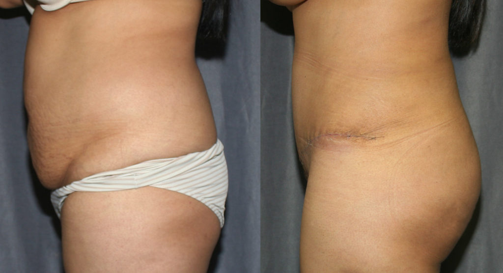 Tummy Tuck and Brazilian Butt Lift Before and After Pictures: In this case, Abdominoplasty is combined with Liposuction of the back and flanks. The fat is harvested and grafted into the buttocks to create fuller, curvier buttocks.