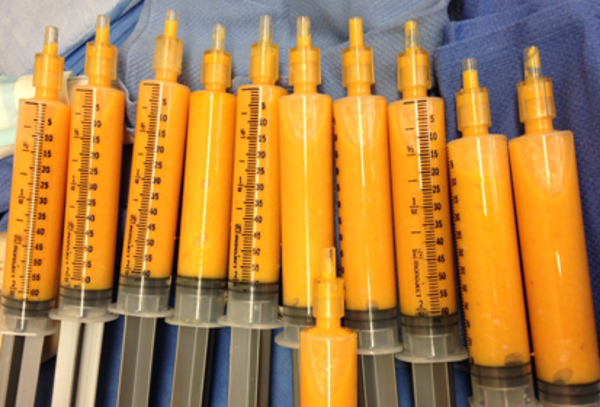 Fat in syringes ready for grafting.