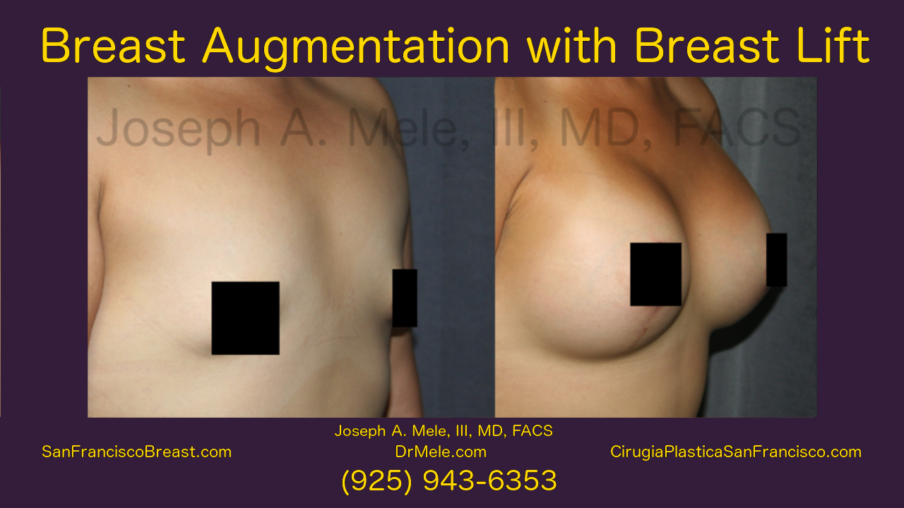 Breast Augmentation Lift Video Mastopexy Augmentation before and after pictures