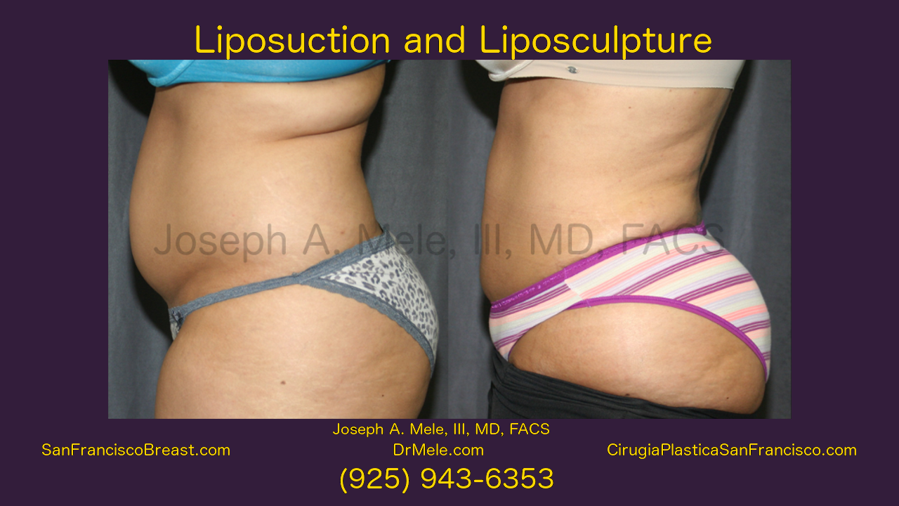 Liposuction Video Presentation with Lipo before and after pictures