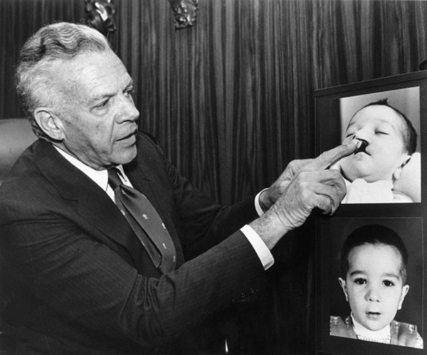 Above - Dr. D. Ralph Millard reviewing before and after pictures of Cleft Lip and Palate surgery. His contribution of the rotation-advancement flap repair remains one of the most significant advancements in the field of congenital lip deformity correction.