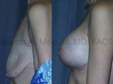 Severely deflated breasts, like those seen above after massive weight loss, need more volume and bigger lifts. An Anchor shaped scar was needed to raise the nipple, remove the overhanging lower breast skin and to tighten the breast skin in the horizontal direction, too.