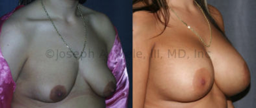 The Breast Augmentation and Breast Lift combination with the smallest scar is the Periareolar Mastopexy Augmentation. An incision around the areola is used to raise the nipple and insert the Breast Implant. In the above case, the flattening effects of the periareolar lift are exploited to help reshape these tubular (tuberous) breasts.