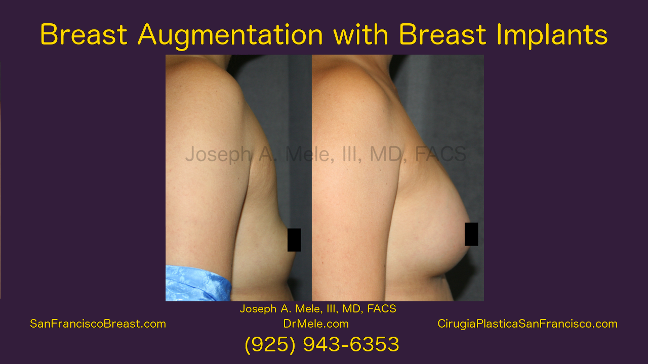 Breast Augmentation Video with Breast Implant before and after photos