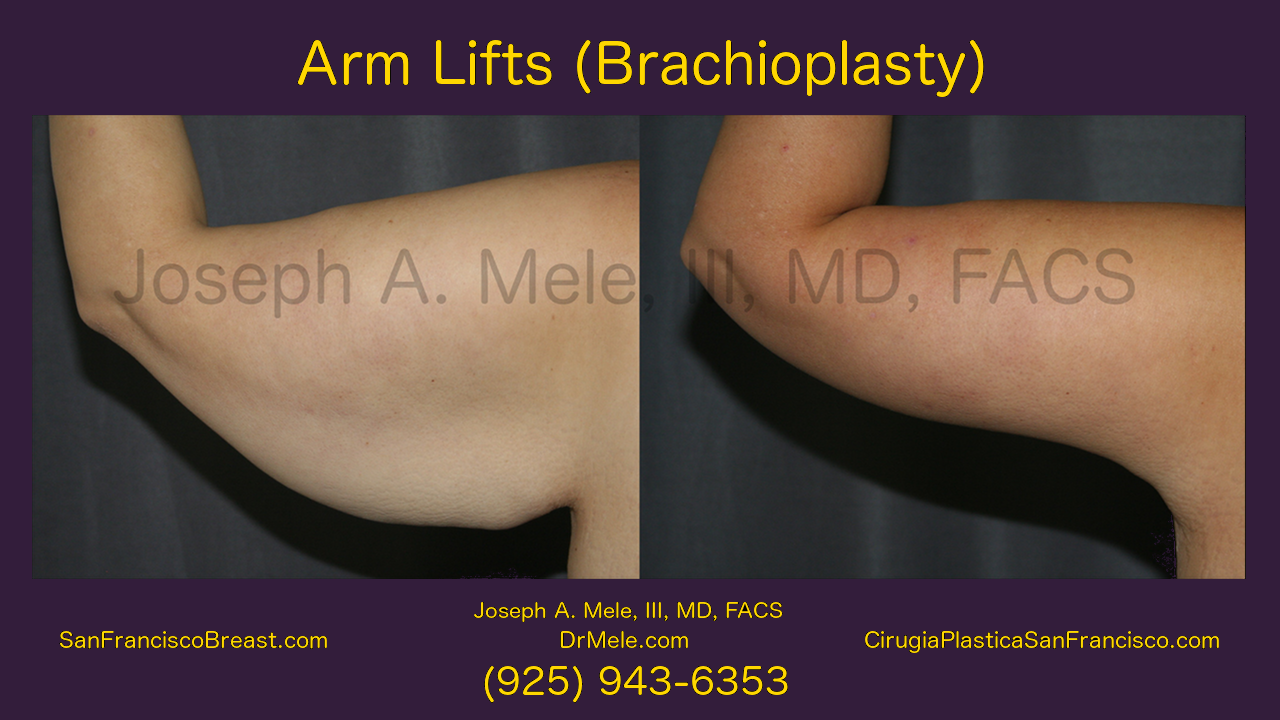 Arm Lift Video with Brachioplasty before and after pictures