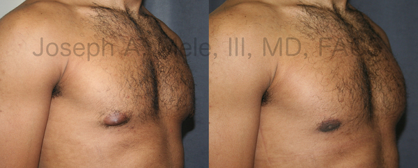Gynecomastia may involve just the area beneath the nipple and areolae or the entire chest. In the male breast reduction before and after pictures above, the fullness beneath the nipples was removed through a small incision placed along the lower margin of the areolae.