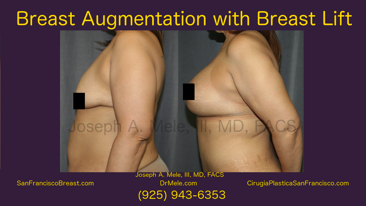 Breast Augmentation Lift Video with Mastopexy Augmentation Before and After Pictures