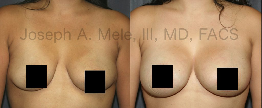 Breast Augmentation adds volume, while Breast Lifts reshape. What happens when you put them together? You get Cosmetic Plastic Surgery that can enhance both breast volume and shape.