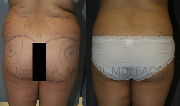 There are two main ingredients for a successful Brazilian Buttocks Lift - selective removal of fat from areas that are too full and selective placement of fat into the buttocks.