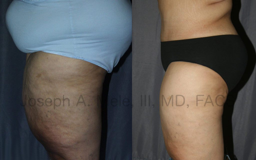 The Thigh Lift is used most often after weight loss. Excess skin and fat from the inner thigh is removed to reduce the size of the thighs and tighten the skin.