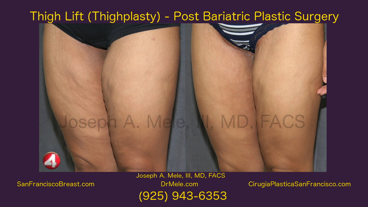 Thigh Lift Video with Thighplasty before and after pictures