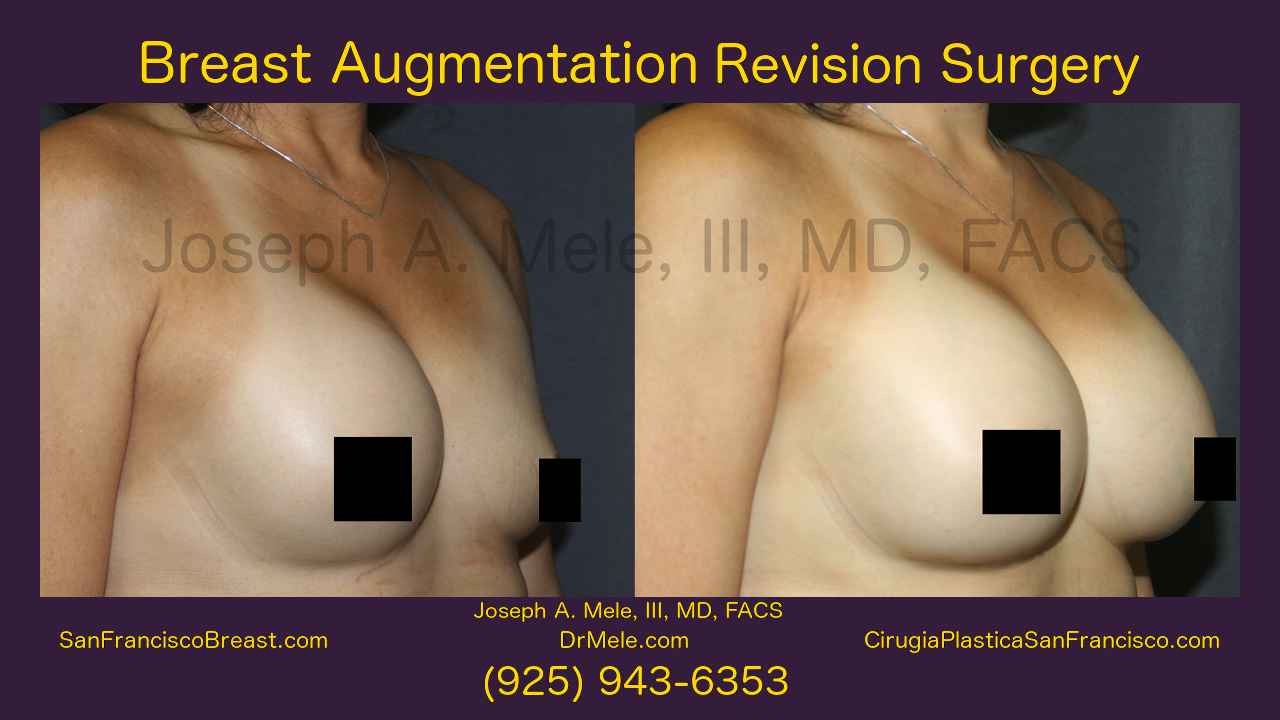 Breast Implant Revision Video Presentation with Before and After Pictures