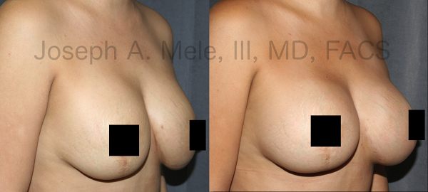 The most common reason for Breast Augmentation Revisions is to go bigger. This is especially common after pregnancy with preexisting breast implants as shown above.