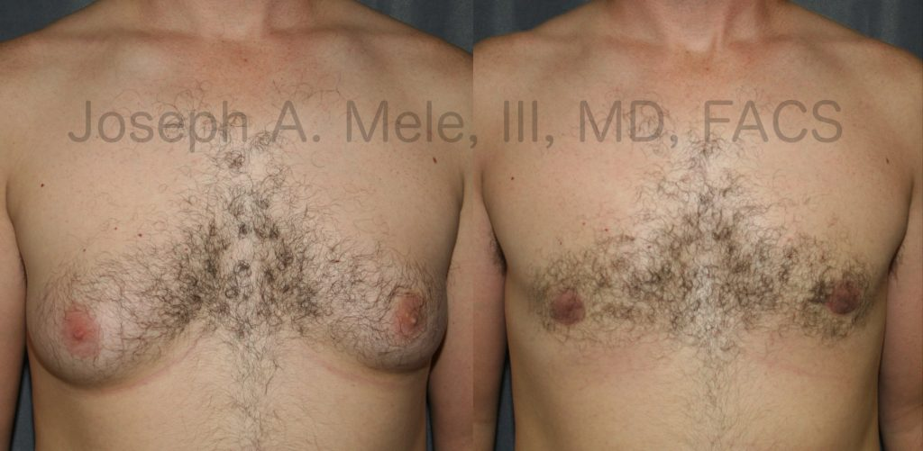 The above Gynecomastia reduction surgery before and after photos show what is possible with a combination of liposuction and direct excision for an enlarged male chest.