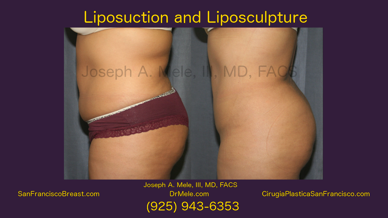 Liposuction Video – Liposculpture Video Presentation