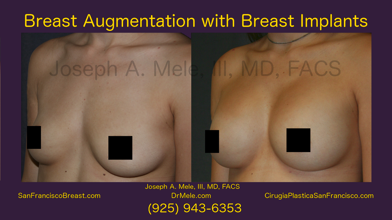 Breast Augmentation With Breast Implants Video Presentation