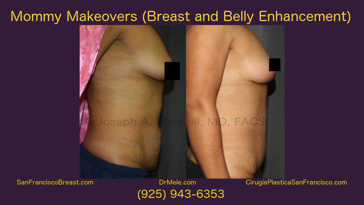 Mommy Makeover Video featuring Breast Augmentation and Tummy Tuck Before and After Pictures