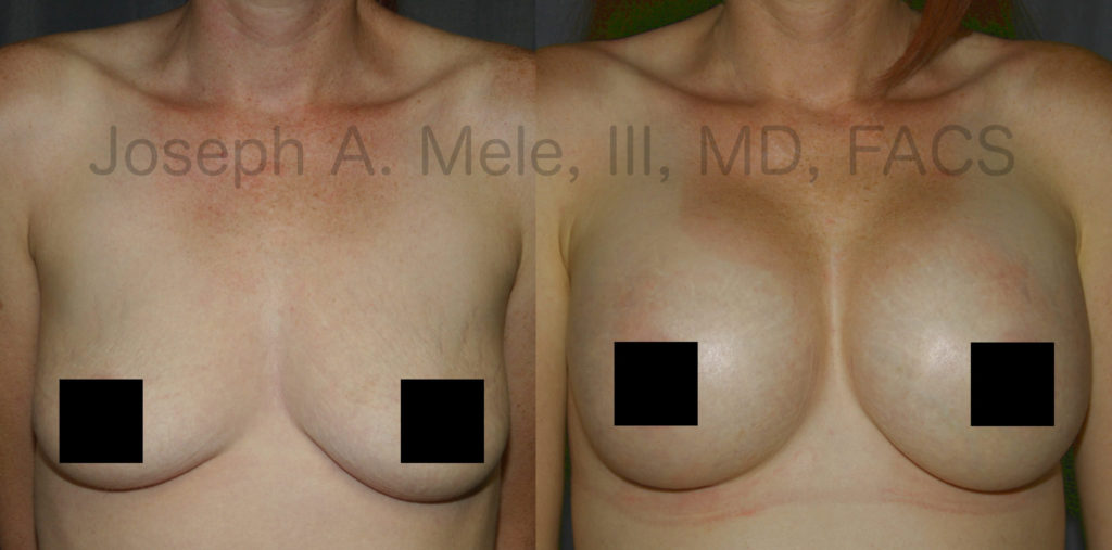 Breast Implants can put the stuffing back into deflated breasts.