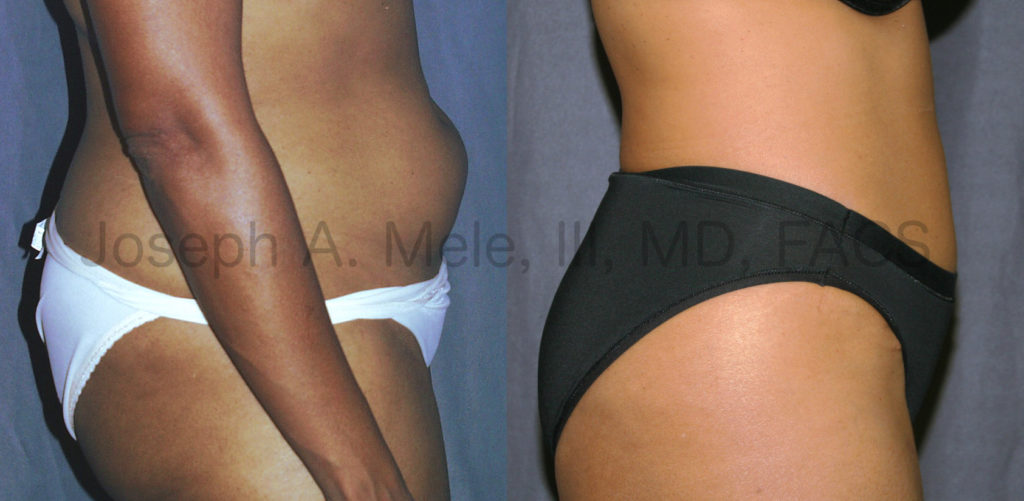 Liposuction removes disproportionate fat. In the above before and after pictures, Liposculpture is used to further enhance a Tummy Tuck.