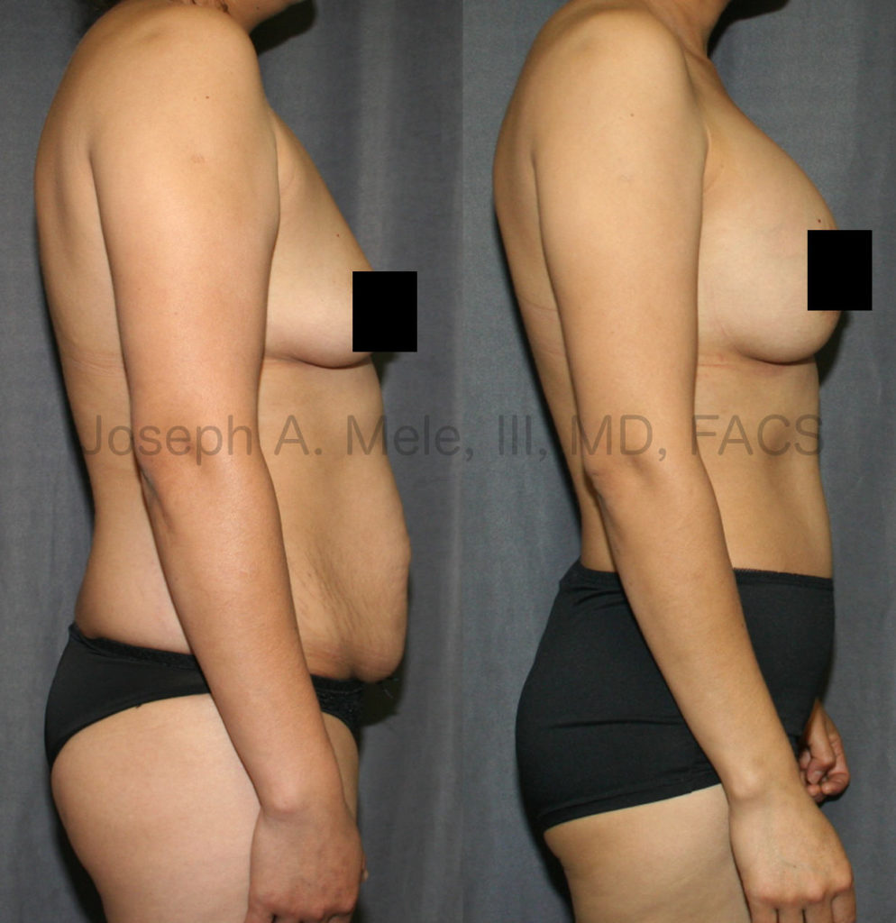 This mommy has been shown here before. She is maintaining her healthy lifestyle and her beautiful results.