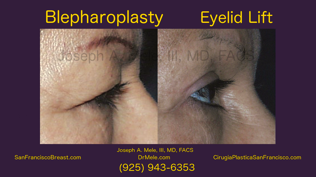 Blepharoplasty Video with Eyelid Lifts Before and After Photos