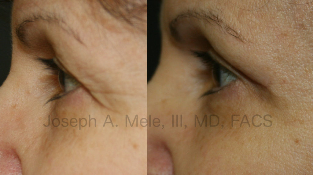 In these Blepharoplasty Before and After Pictures, the before picture on the left shows the lateral brow skin completely covering the outer eyelid. In the after picture on the right, the brow skin is elevated, giving a much cleaner, refreshed and younger look.
