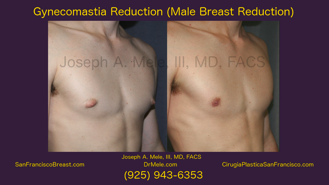 Gynecomastia Surgery (Male Breast Reduction) Video Presentation with Before and After Pictures