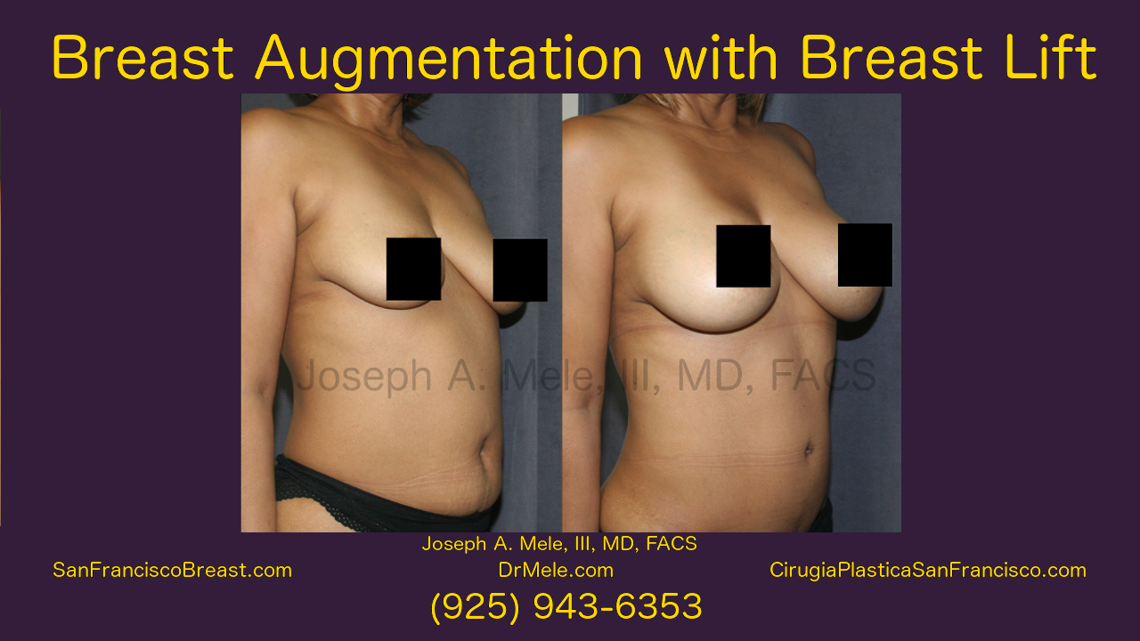Breast Augmentation and Breast Lifts Viideo with Before and After Photos
