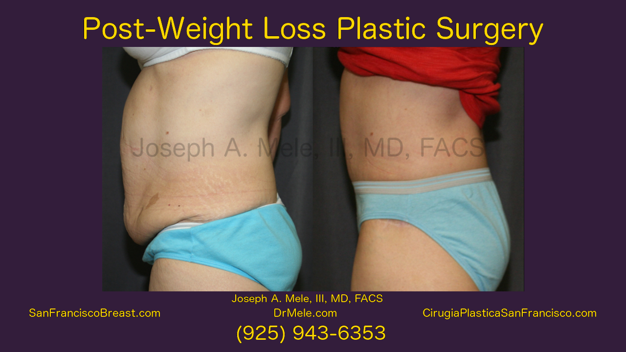 Post-Weight Loss Plastic Surgery Video with Post-Bariatric Plastic Surgery Before and After Pictures