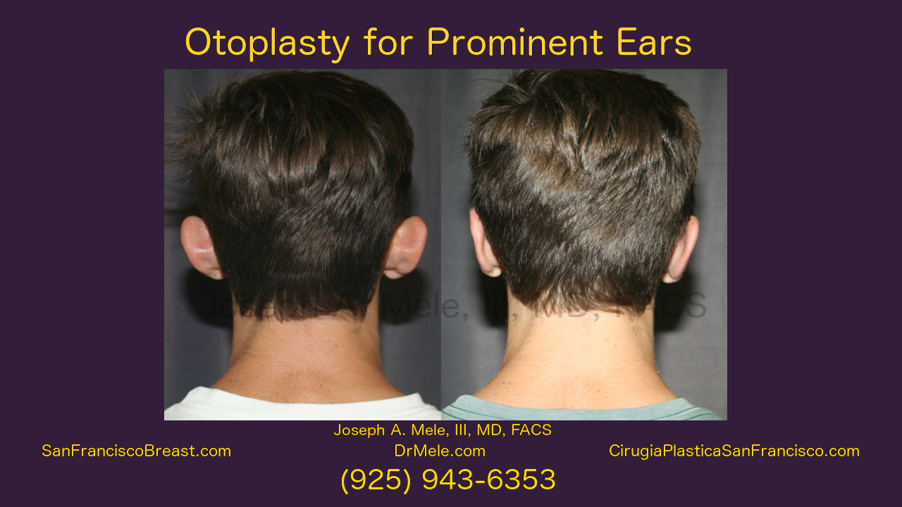 Cosmetic Ear Surgery Video with Otoplasty Before and After Pictures