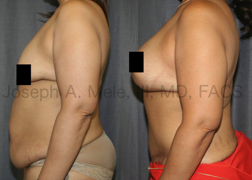 Massive weight loss will shrink our volume, but does not reliably shrink our skin. In the before and after pictures above, breast volume is restored with breast implants. Sagging breast skin is tightened with a breast lift.  Excess abdominal skin is removed, and the belly bulge caused by stretched out abdominal muscles is flattened by tightening the muscle sheath.