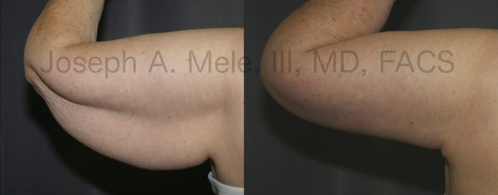 Brachioplasty literally means arm changing. An arm lift can change the way an arm looks, feels and fits into sleeves.