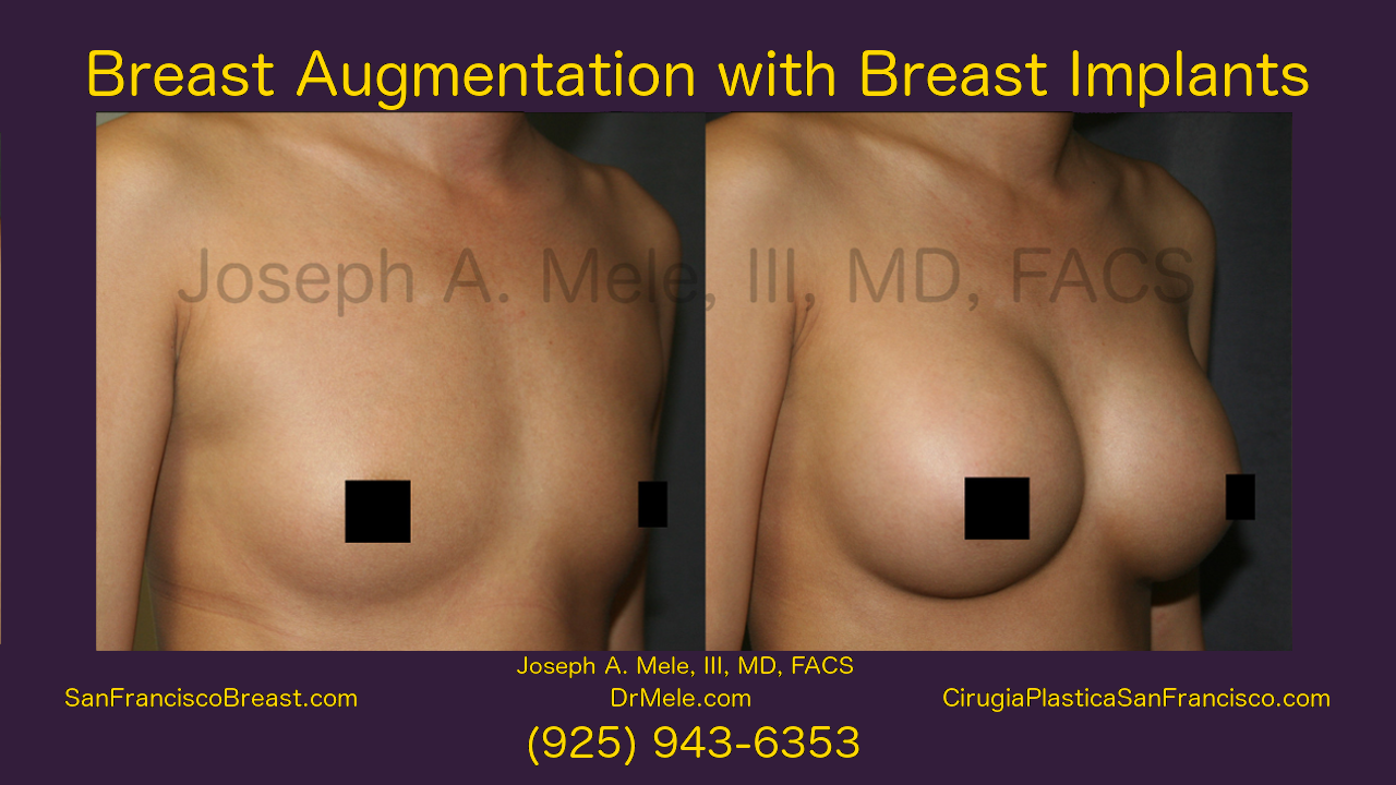 Breast Augmentation Video with Gummy Bear Breast Implants Before and After Pictures