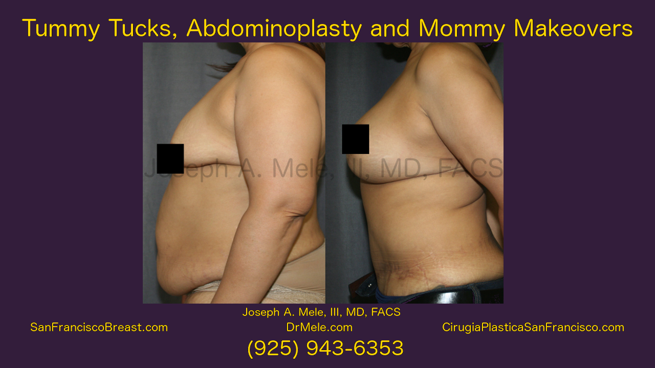 Mommy Makeover Video Presentation with Breast and Belly Enhancement Before and After Pictures