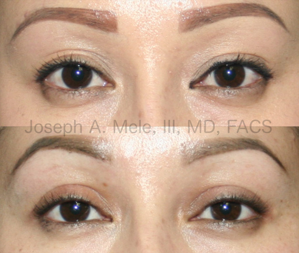 Double Eyelid Surgery can correct low, indistinct or multiple eyelid folds. These double eyelid before and after pictures show how the folds can be raised, sharpened and made more symmetrical.