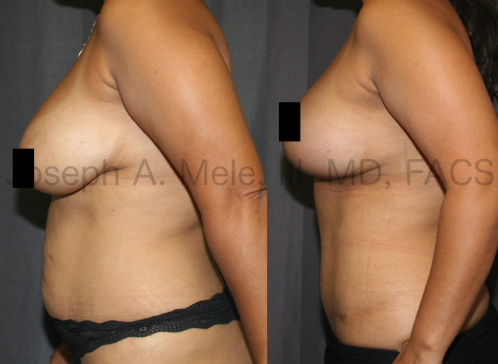 More Mommy Makeover before and afters: Again, Abdominoplasty is combined with Breast Enhancement. In this case, a Breast Lift was combined with a Tummy Tuck for a uplifted, aesthetic result.