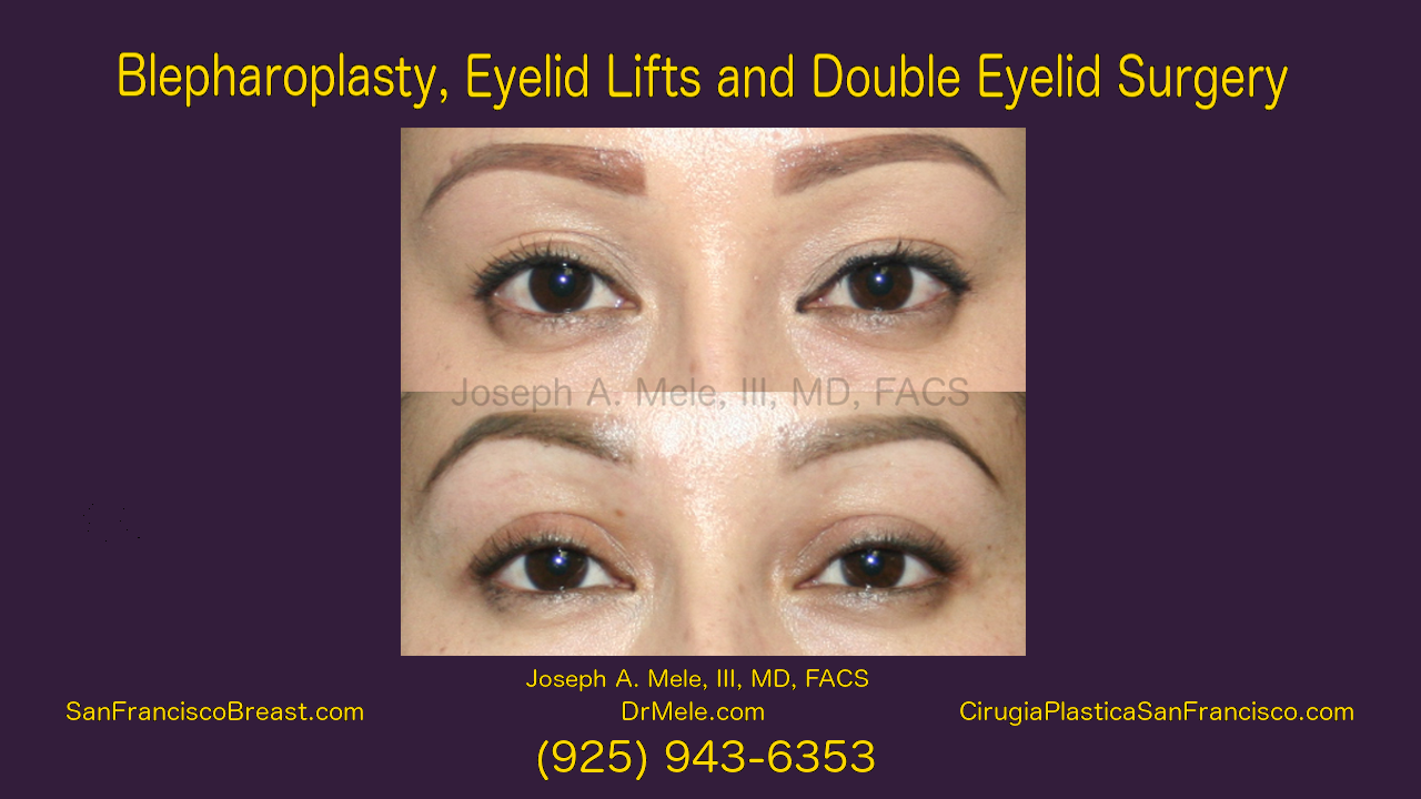Eyelid Lifts and Double Eyelid Surgery Video Presentation with Before and After Photos