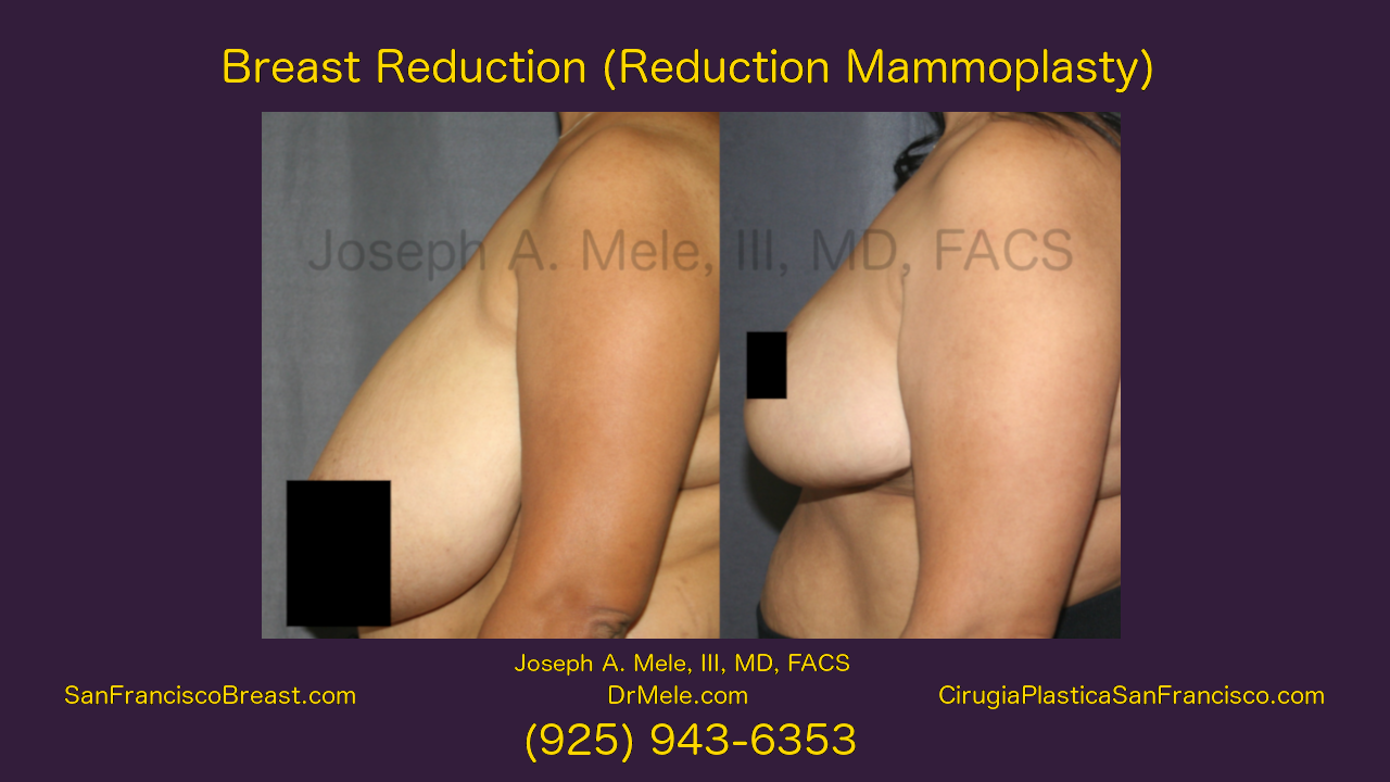 Breast Reduction Video with Reduction Mammoplasty Before and After Pictures