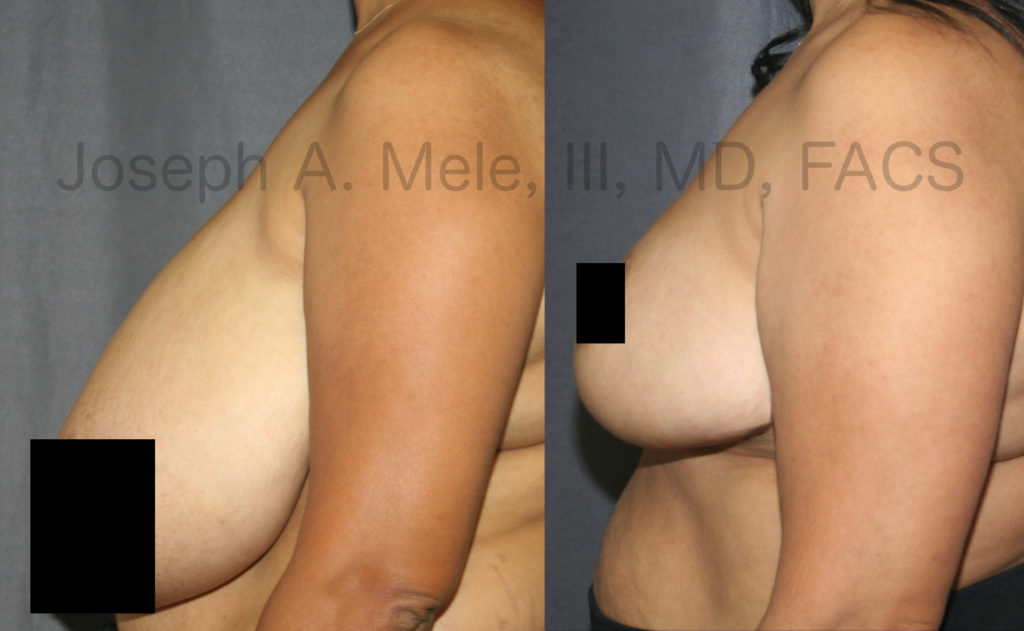 Breast Reduction can significantly reduce neck, back and shoulder pain.