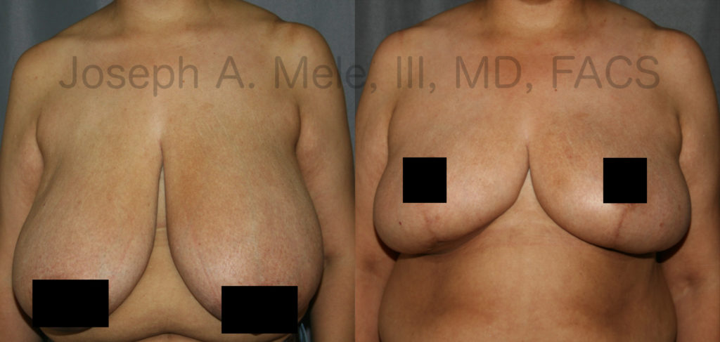 <strong>Reduction Mammoplasty Before and After Pictures:</strong> Breast Reduction not only helps reduce the symptoms associated with large breasts but can also increase ones fashion options.