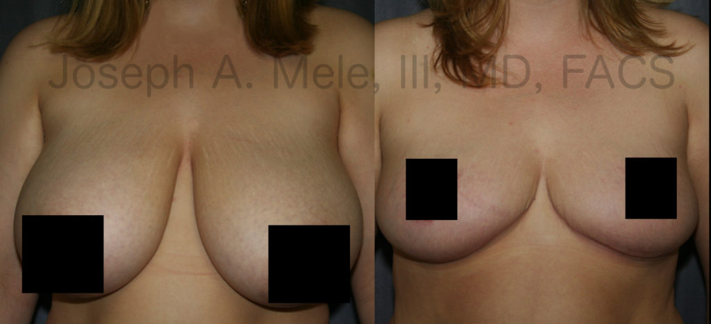 Breast Reduction combines reduction of the breast volume with a breast lift to reduce the torque on the back an  the neck.