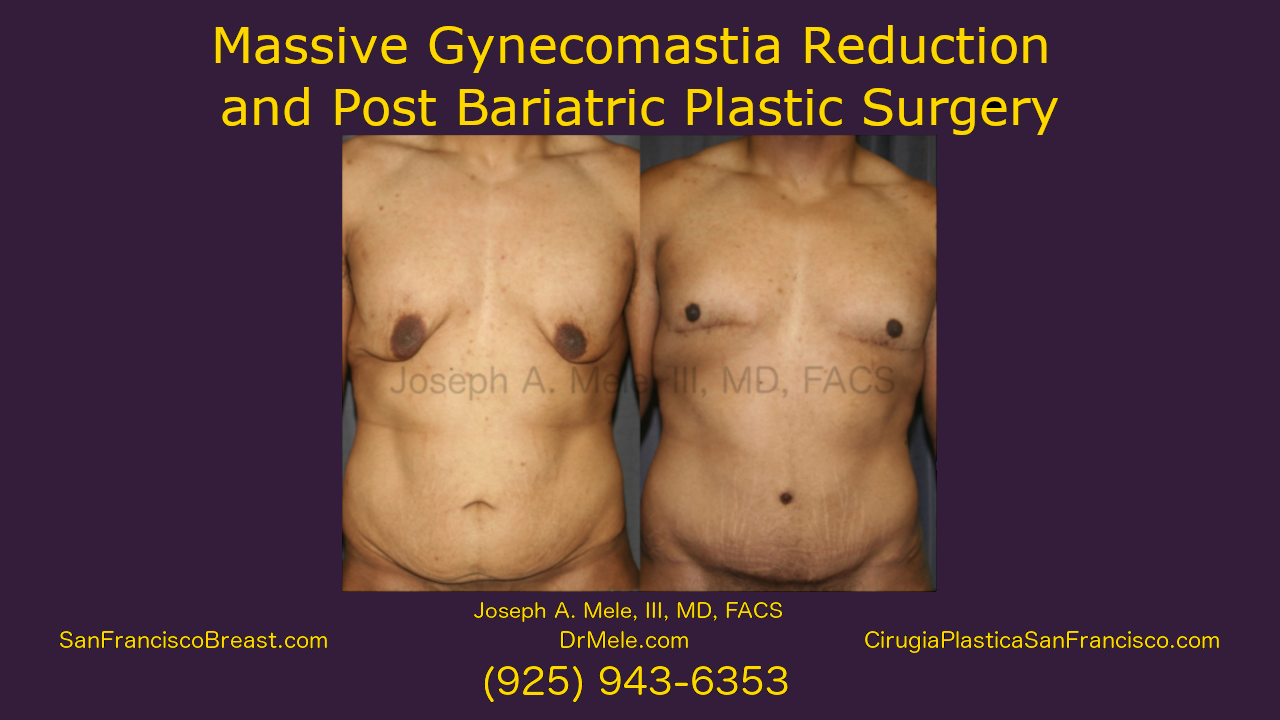 Post Bariatric Plastic Surgery Massive Gynecomastia Reduction Video with Before and After Pictures