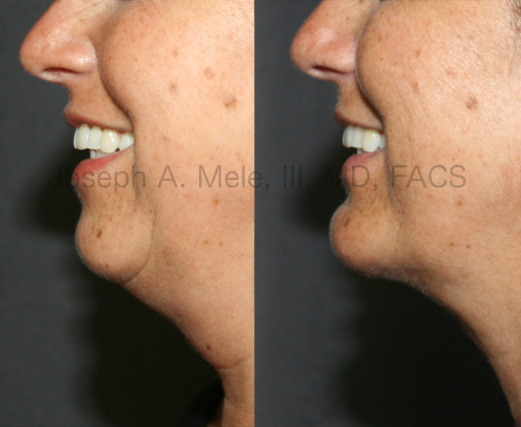Chin Implants provide stable Chin Augmentation. In the above Chin Implant before and after pictures the patient is smiling. Even with animation, the enhanced projection is maintained and the definition of the neck line is clearly defined. In cases where there is disproportionate fat of the neck, Chin Augmentation can be combined with Neck Liposuction to further enhance your profile.