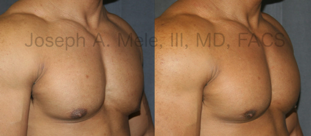 Liposuction can be used for gynecomastia reduction in selected cases. If the fullness beneath the nipple is fat, liposuction alone may help. If it is glandular tissue, direct excision of the gland is needed.